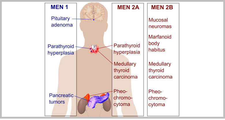 Le Neoplasie Endocrine Multiple (MEN)